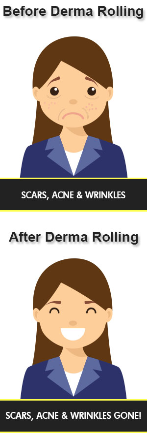 before and after derma rolling